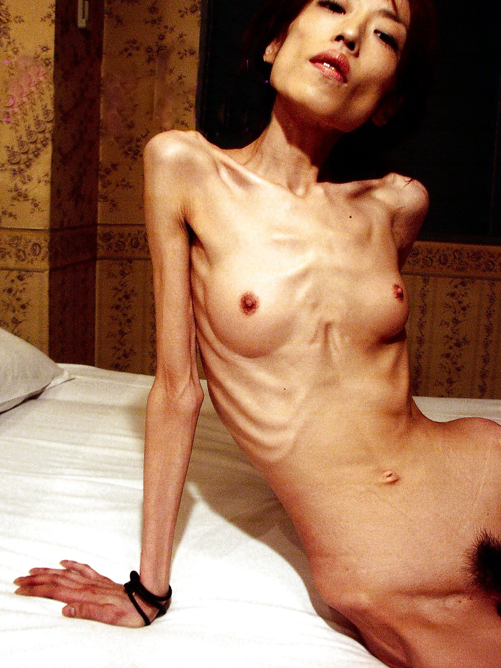 Nude anorexia photos — pic 11