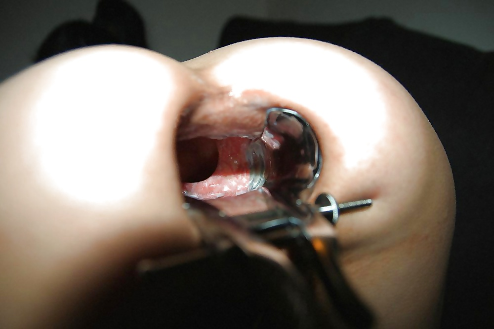 Anal speculum videos — photo 13
