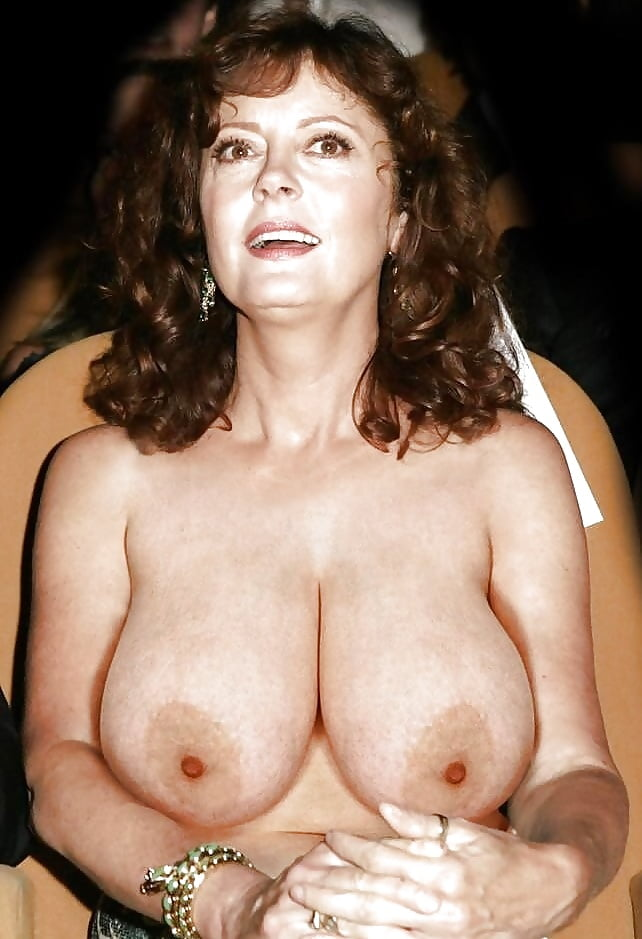 Does insurance cover breast implants