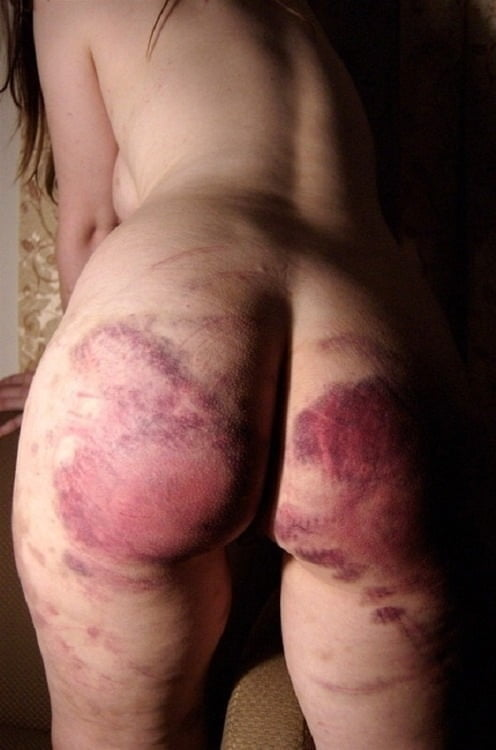 What does a vagina look like after a hysterectomy-9180