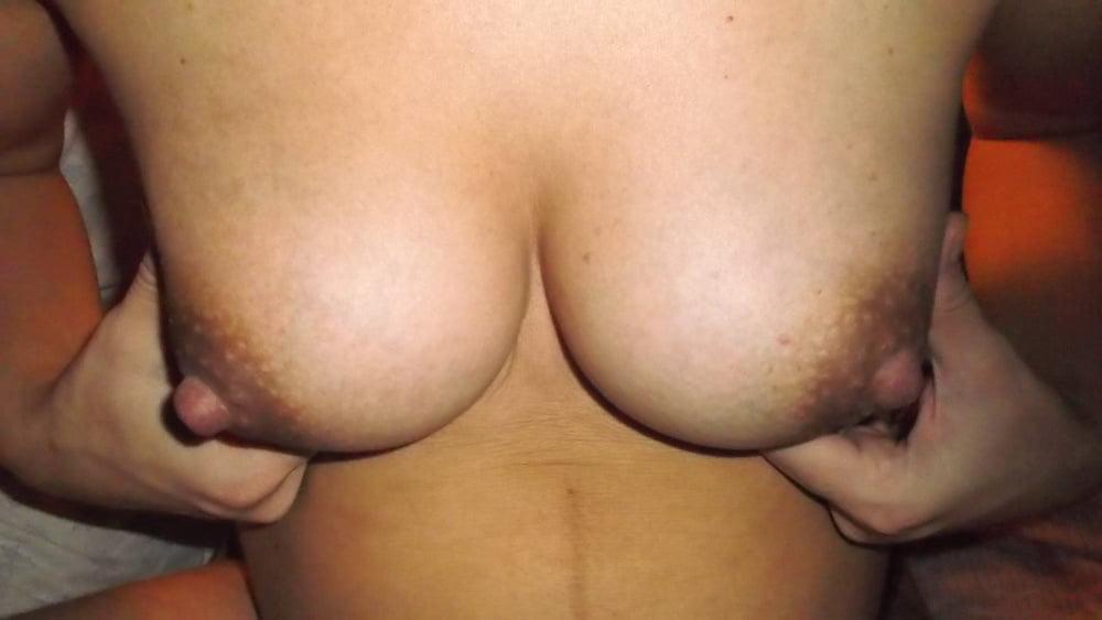 Gynecomastia Alert