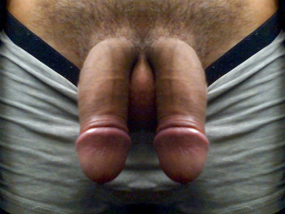 Buried Penis Symptoms