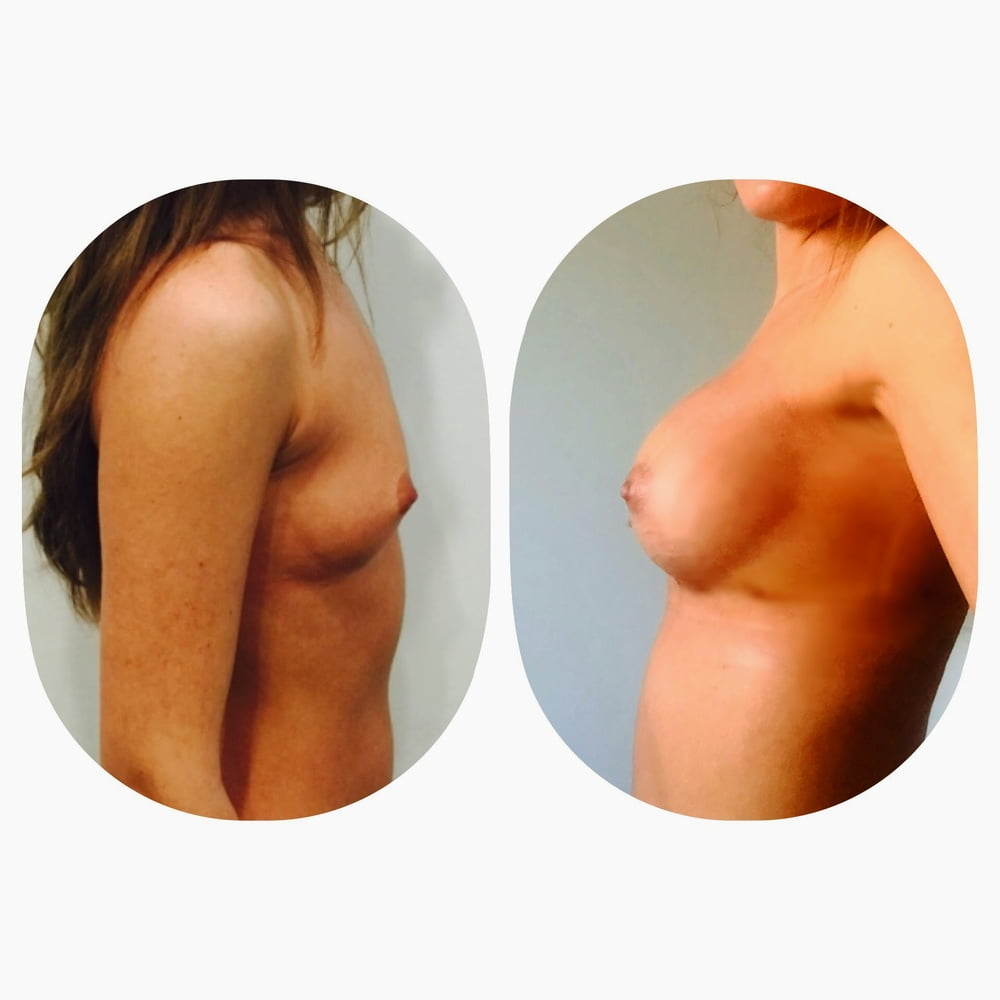 enlargement surgery Boob