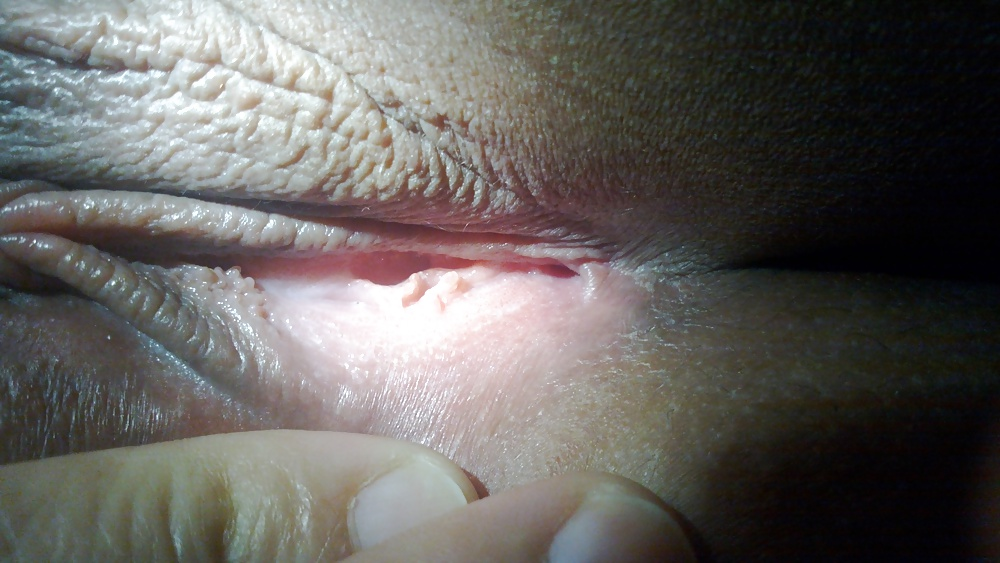 Vaginal pimples and other odd places you can get acne here's what to do