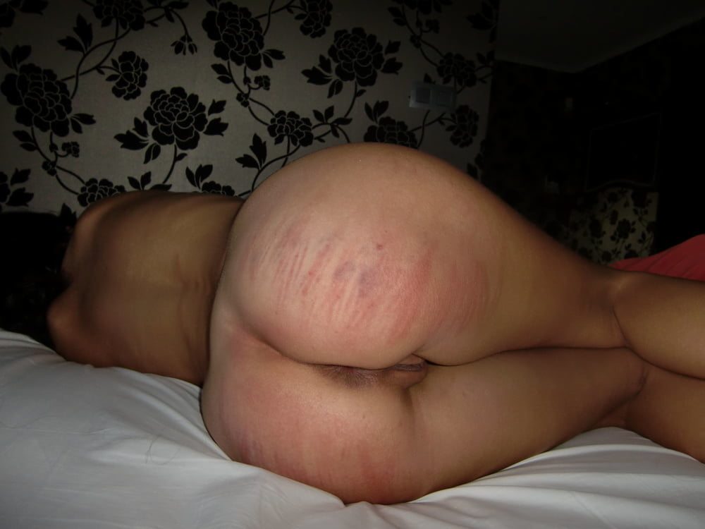 What does a vagina look like after a hysterectomy-5339