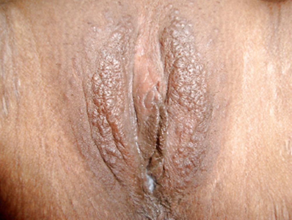 Vaginal dryness in post menopausal women