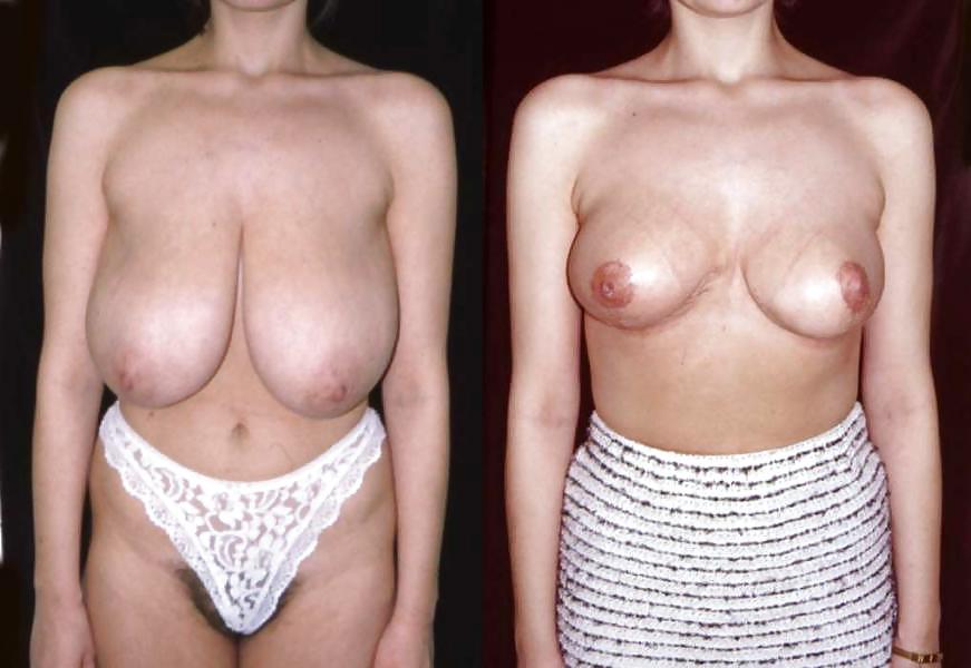 surgery-big-boob-pay-per-view-korean-sexy-girl-albums-xxx