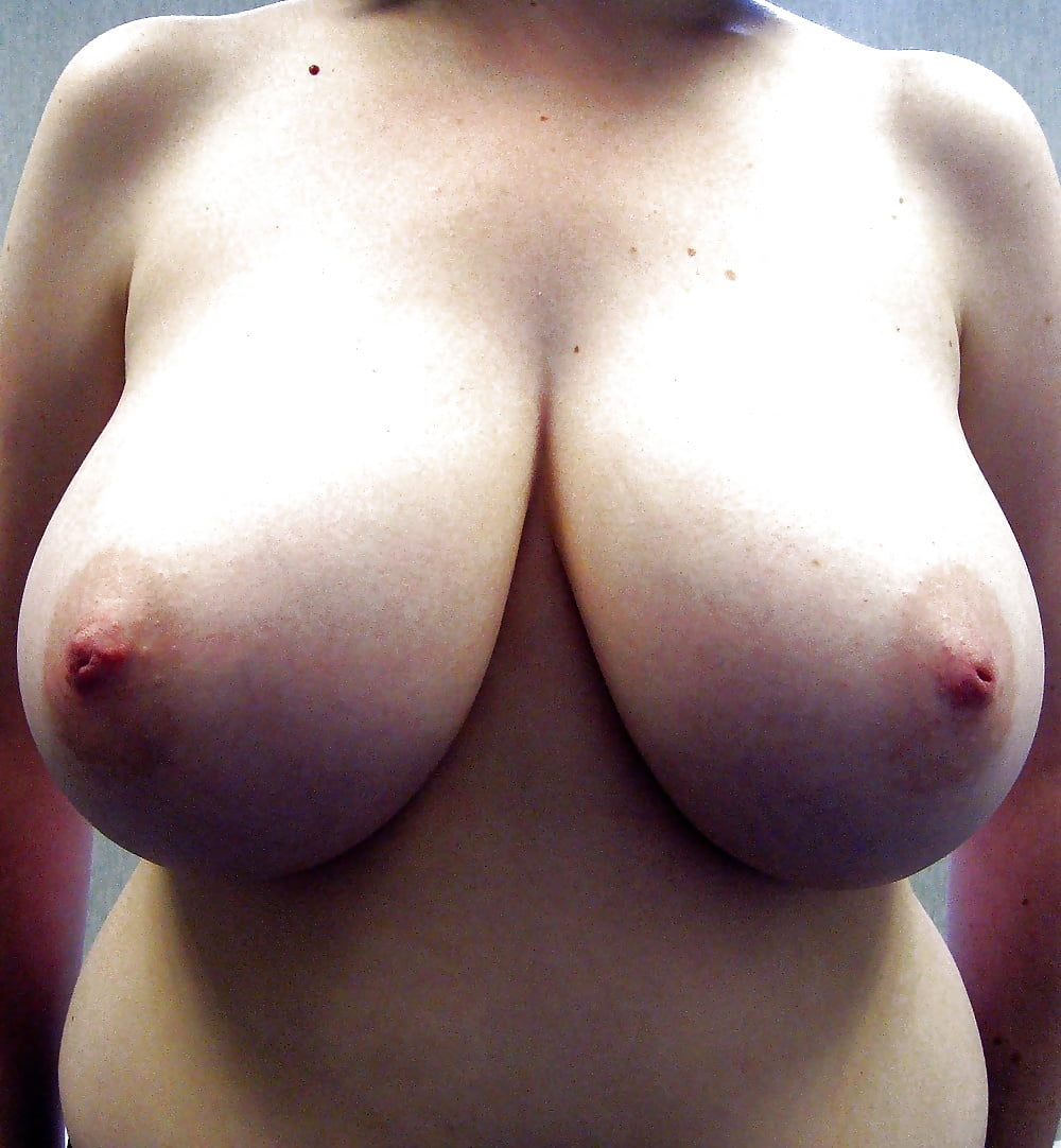 Breast lift areola reduction cost-5855