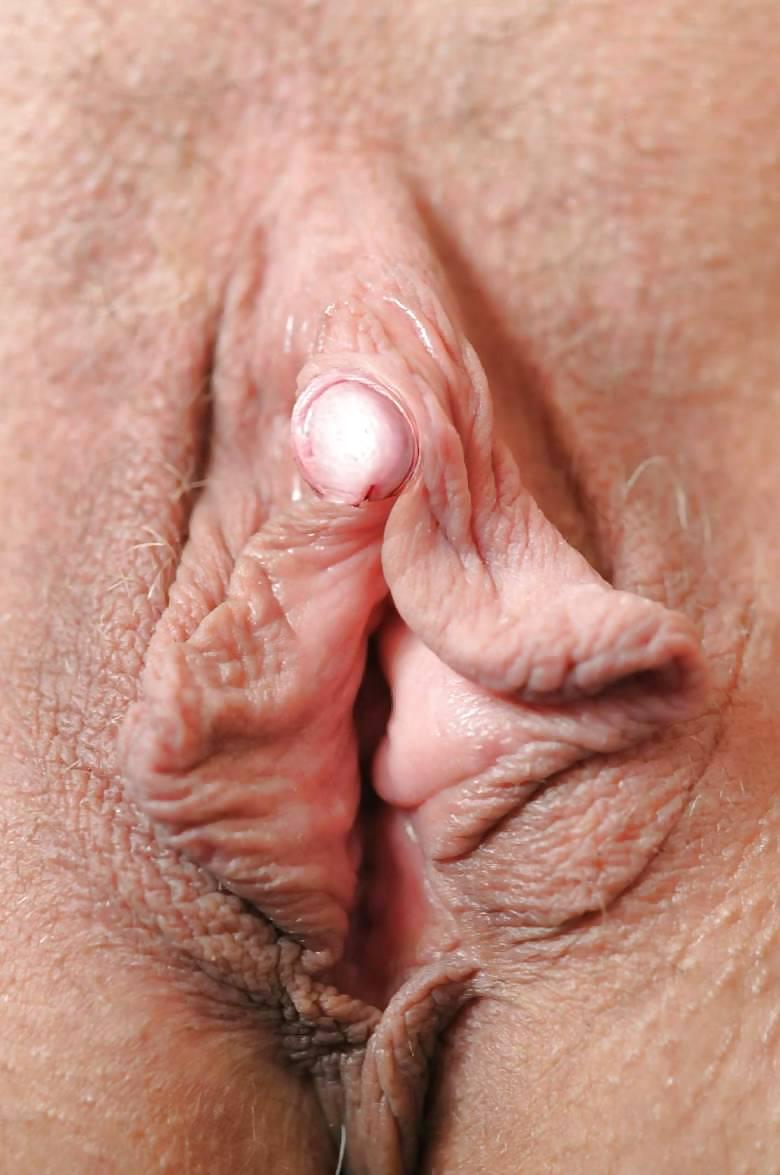 Free mature clitoris — pic 1