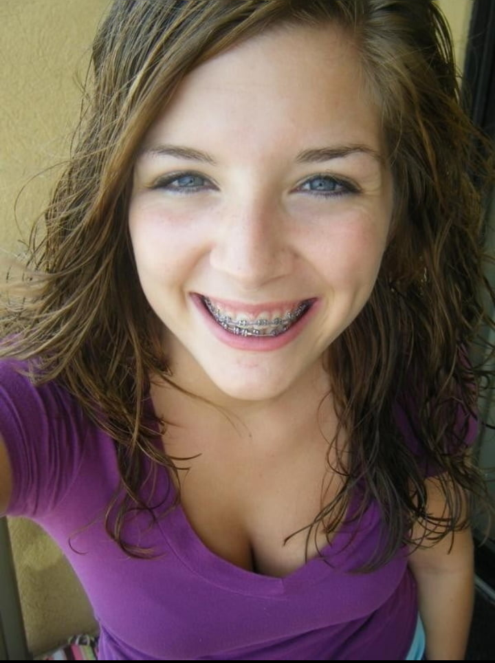 Sexy girl with braces, to young for big tits