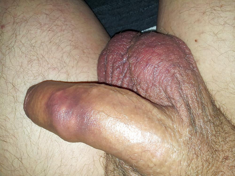 Penis feels bruised
