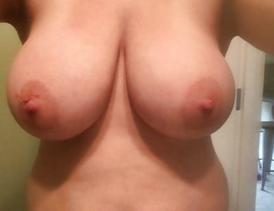 Breast reduction dd to a