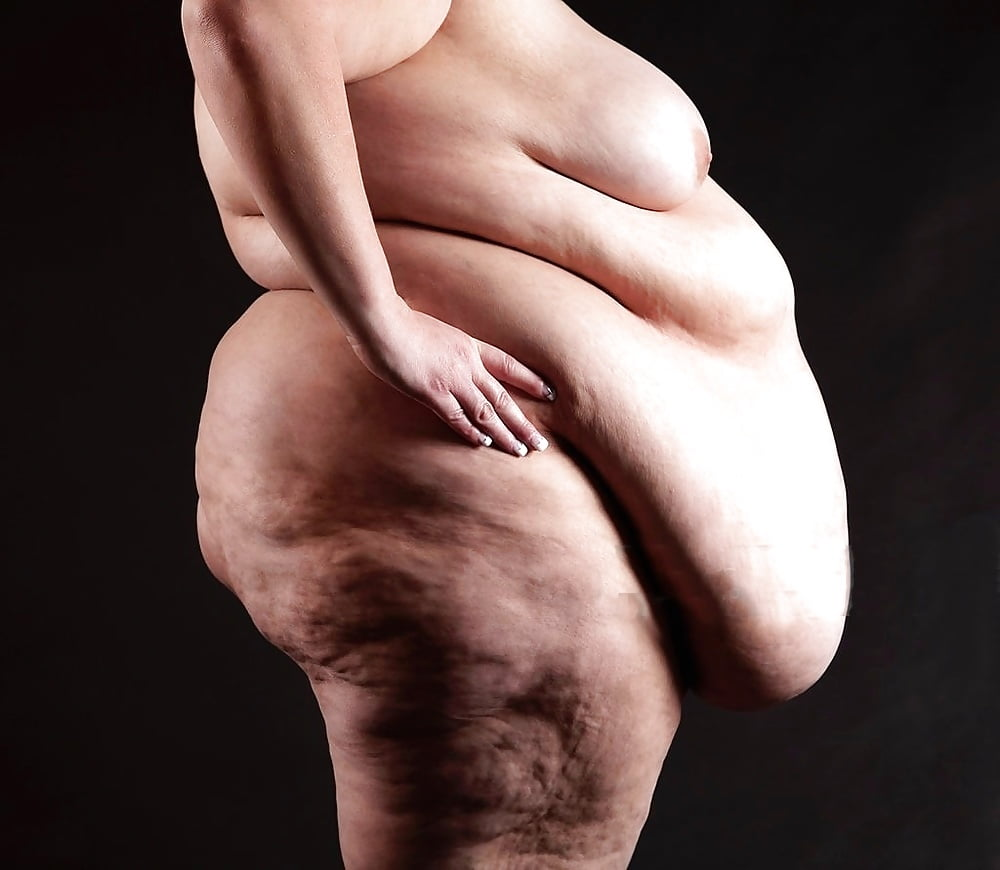Naked morbidly obese — pic 13