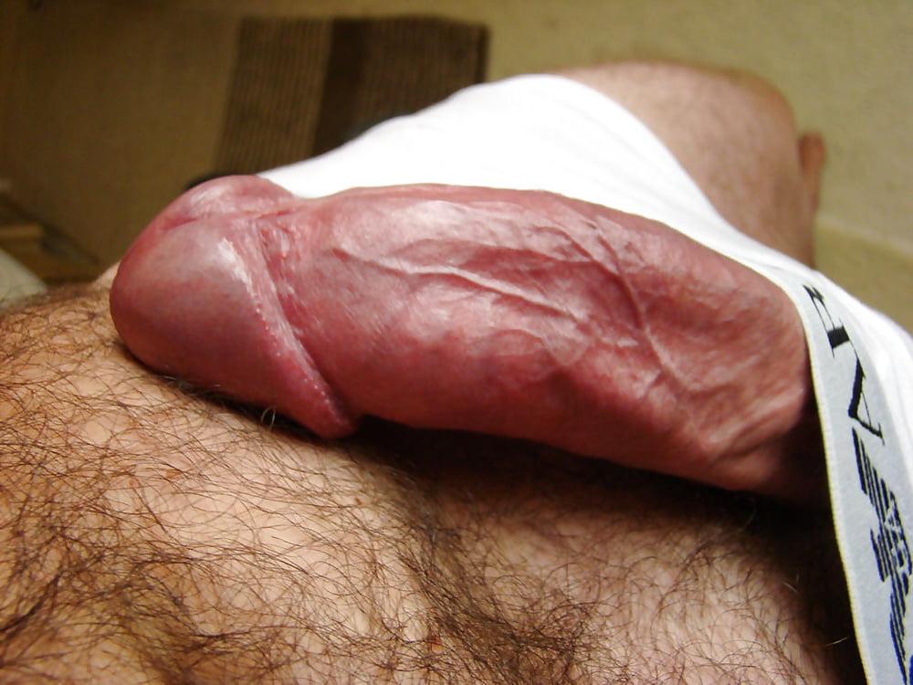 Penile blood vessel